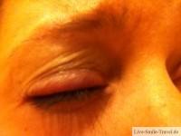Auge geschwollen